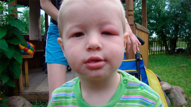 Последствия укуса осы у ребенка
