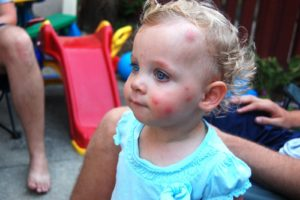Комариные укусы и дети.