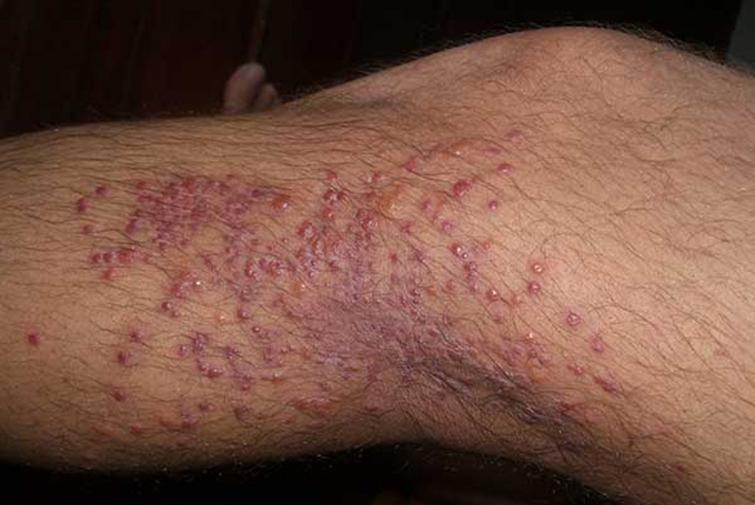 Аллергия от укусов блох
