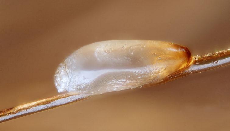 Яйцо бельевой воши