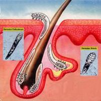 Клещ демодекс на ресницах: лечение и симптомы