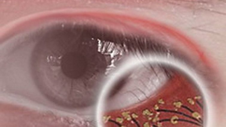 Ресничные клещи (демодекс)